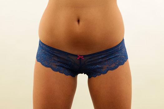 depilacion-intima-femenina